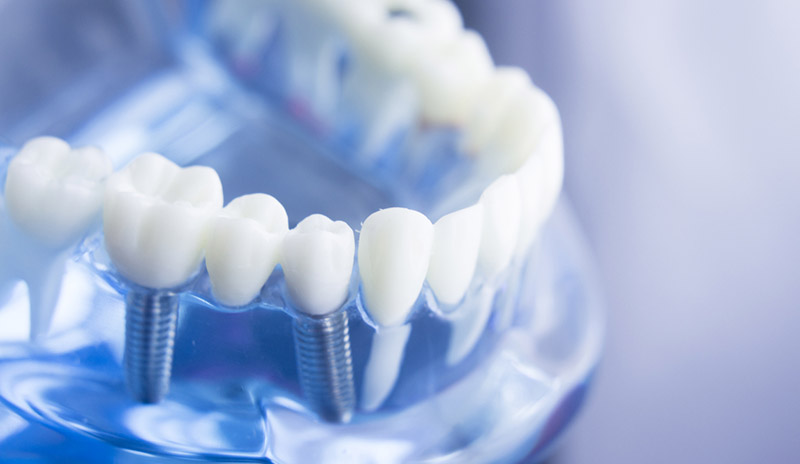 cost of dental implants in Pell City